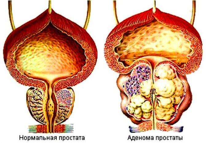 Лучшие таблетки для устранения аденомы предстательной железы