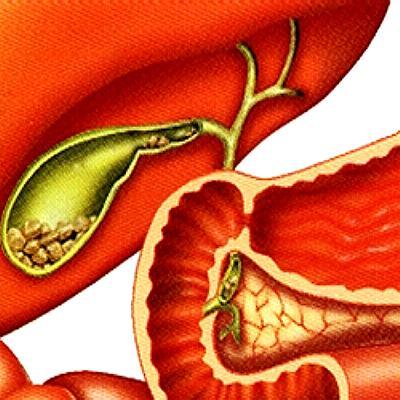 Желчекаменная болезнь - диагностика, лечение и профилактика