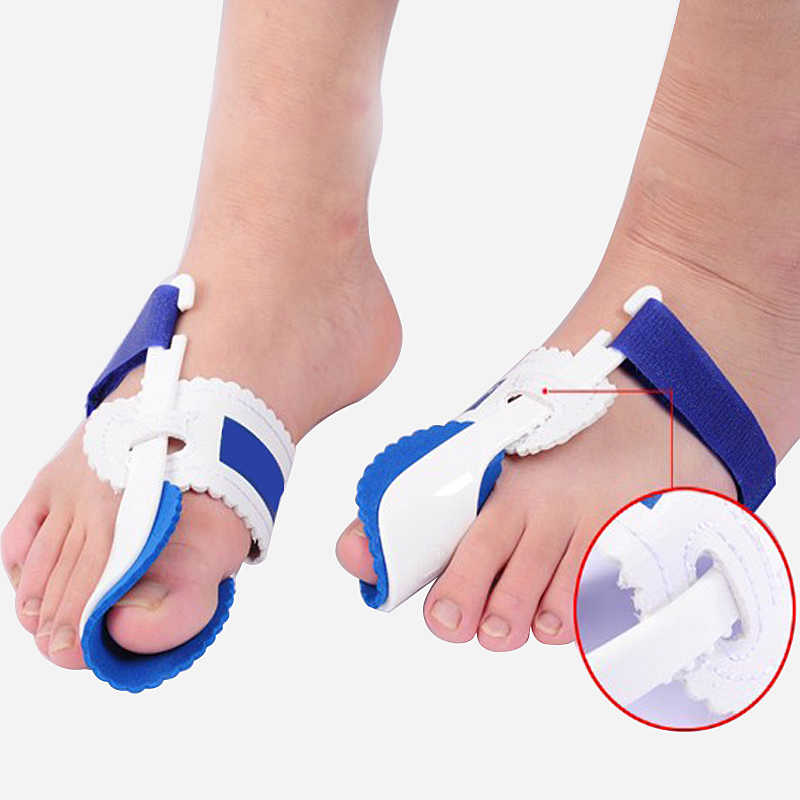 Фиксатор косточки на большом пальце ноги: отзывы, эффективность, преимущества и недостатки