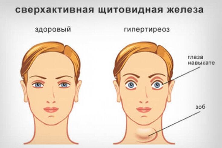 Причины, симптомы, степени и лечение увеличения щитовидной железы