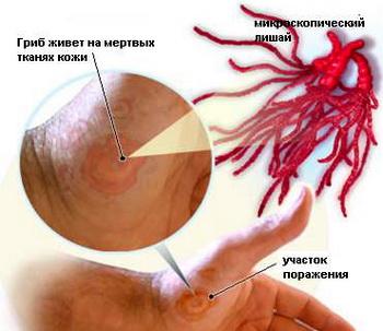 Лишай розовый жибера. клинические рекомендации.