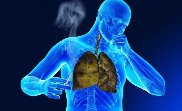 Многообразие форм туберкулеза легких и внелегочного туберкулеза. формы открытые и закрытые