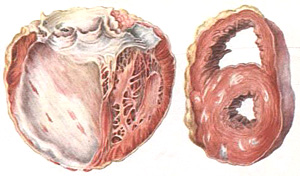 Постинфарктный кардиосклероз — причины, симптомы, диагностика и лечение