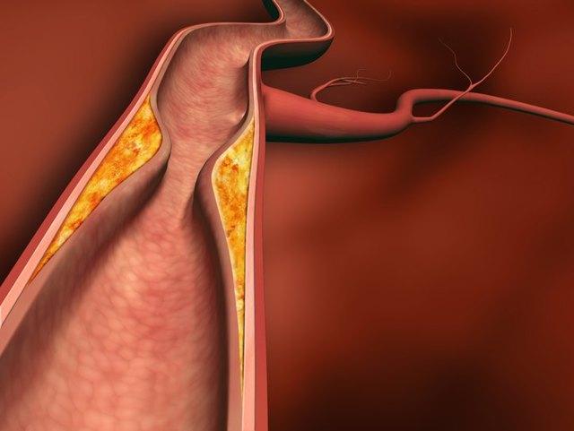 Окклюзия артерий нижних конечностей