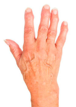 3 разновидности артроза кистей рук