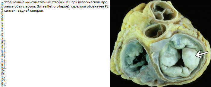 Митральный клапан сердца симптомы. пролапс митрального клапана лечение