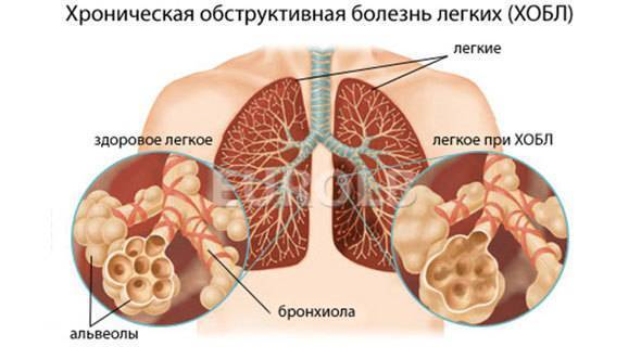 Курение и пневмония: вред привычки и последствия при заболевании