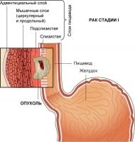 Меню при раке пищевода и желудка