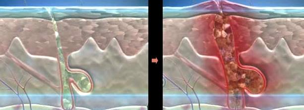Прыщи (акне). причины и лечение прыщей. прыщи на лице, на теле, на лбу, на подбородке, на половых органах, на спине, на ногах и руках. лечение прыщей в домашний условиях.