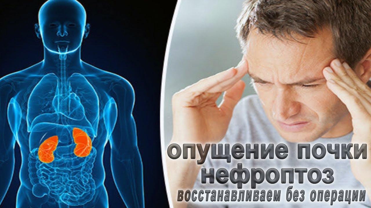 Стадии развития нефроптоза правой почки: симптомы, лечение и предупреждение заболевания
