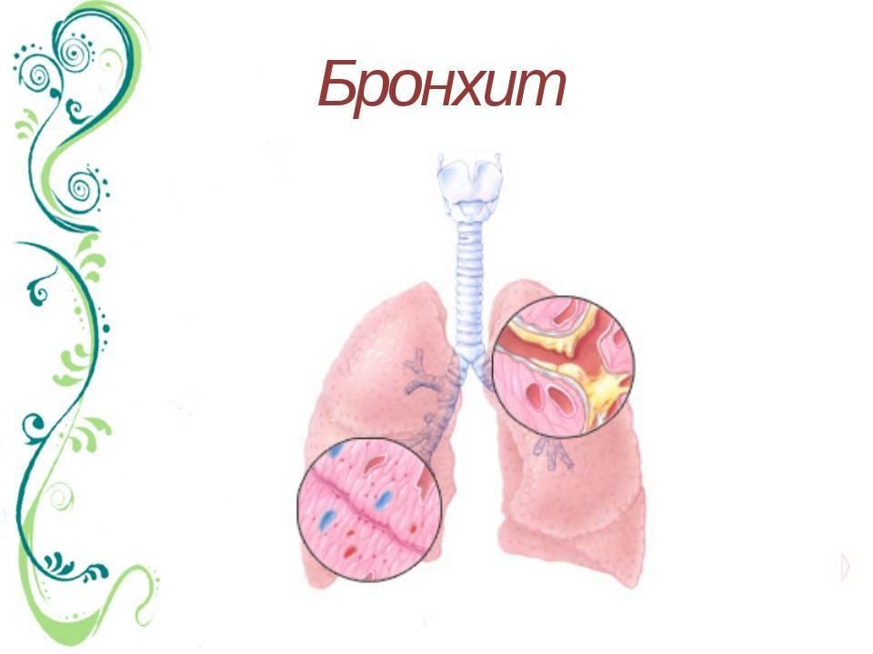 Бронхопневмония у ребенка сильный кашель