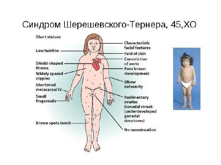 Что за странный диагноз — генитальный инфантилизм? недоразвитие половых органов (инфантилизм).