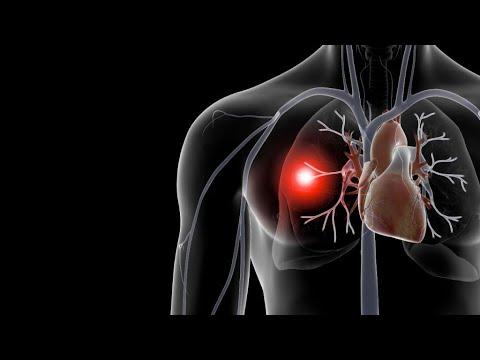 Артериальный тромбоз: лечение, симптомы, причины