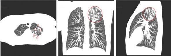 Как отличить пневмонию от туберкулеза на кт