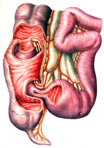 Заворот кишок. причины, симптомы, диагностика, лечение и профилактика :: polismed.com