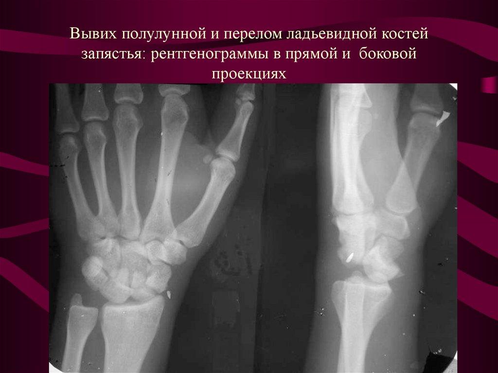 Травмы (переломы) лучевой кости