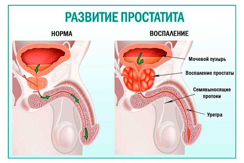 Воспаление простаты у мужчин: симптомы, причины, лечение