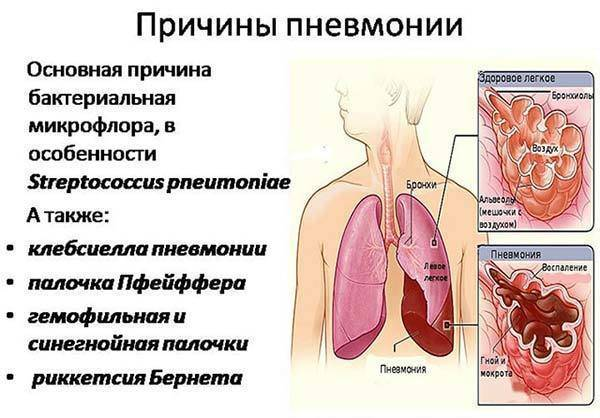 Медикаментозное лечение воспаления легких у детей по официальным рекомендациям и стандартам