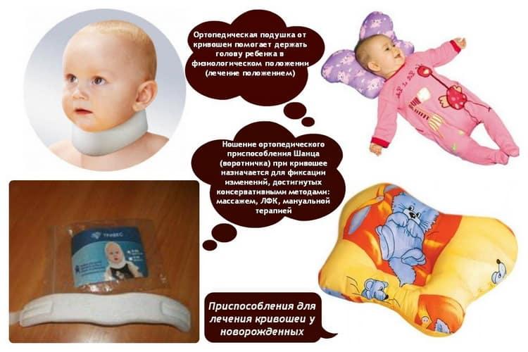 Признаки кривошеи - кривошея у ребенка 2 месяца фото - запись пользователя анастасия (nastalgiya) в сообществе здоровье новорожденных в категории кривошея - babyblog.ru
