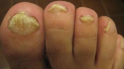 Самые сильные средства для лечения запущенной формы грибка ногтя на ногах и руках в домашних условиях
