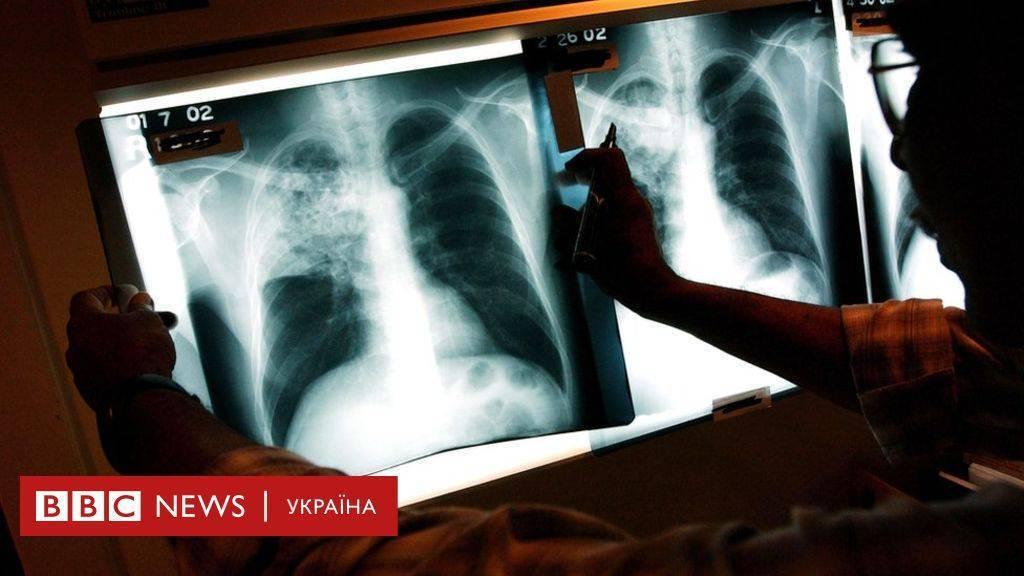 Госпитализация больного туберкулезом