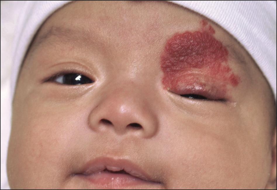 Криогенное лечение доброкачественных сосудистых опухолей  - гемангиом у детей. первый визит к врачу