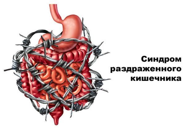 Диета при синдроме раздраженного кишечника
