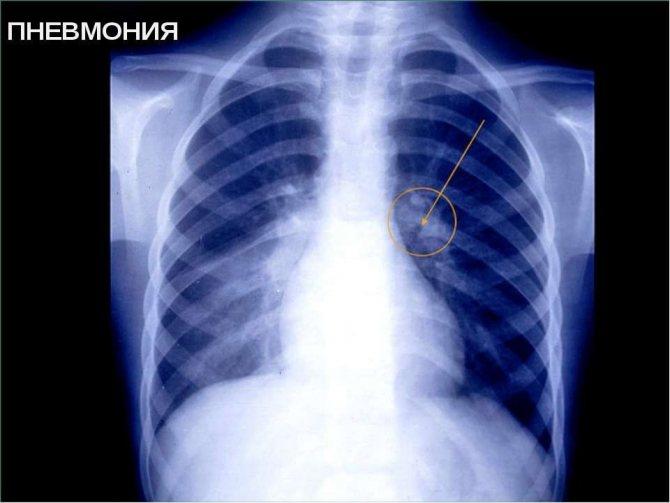 Пневмония у грудничков