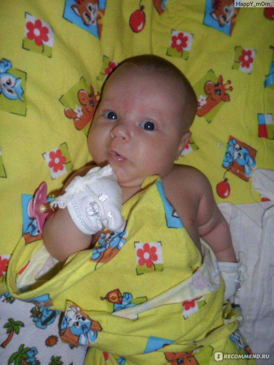 Лечение кефалогематомы у новорожденных и возможные последствия