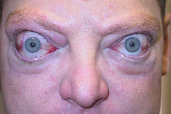 """Симптом экзофтальма глаз - причины появления и лечение. сайт """"московская офтальмология"""""""