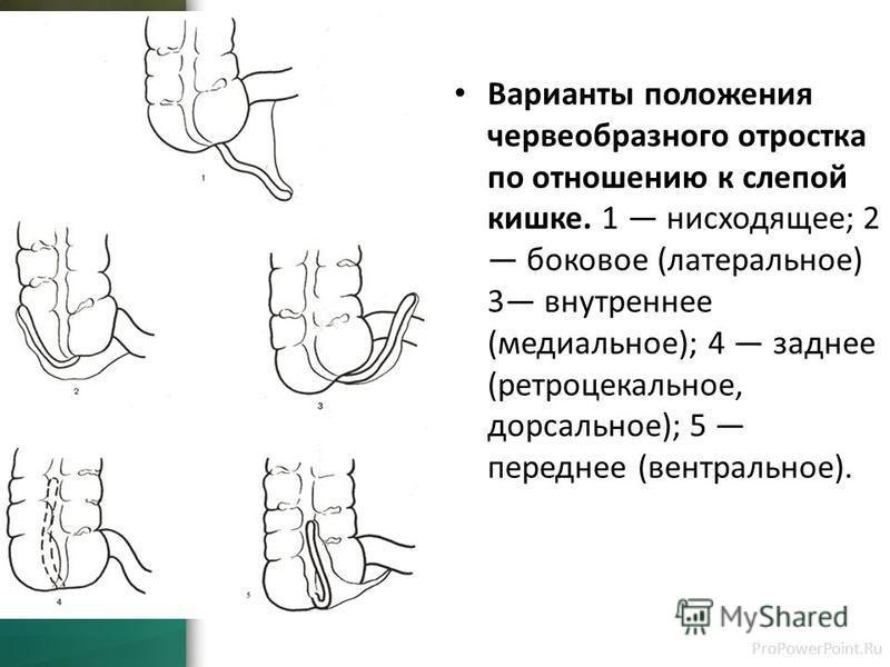 Анатомия человека: слепая кишка. червеобразный отросток ( апендикс, аппендикс ). строение, стенки червеобразного отростка ( апендикса, аппендикса ). строение, стенки слепой кишки.