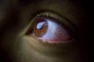 Причины повышения глазного давления у взрослых