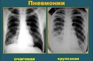 Рентген легких: показания к проведению, оценка вредности и особенности процедуры