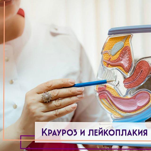 Лечение лейкоплакии и крауроза народными средствами