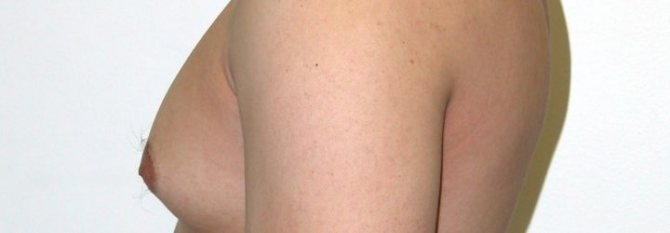Причины набухания молочных желез: месячные, климакс и другие