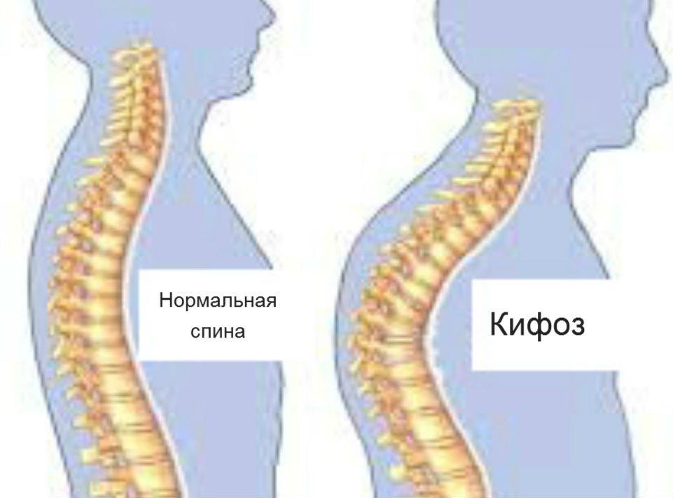 Лфк при кифозе грудного отдела позвоночника для детей