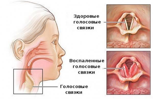 Кашель у ребенка: причины и лечение. сухой кашель