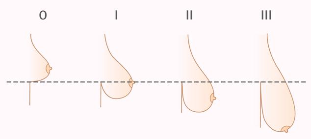 Обвисает грудь после родов и кормления,  способы подтяжки груди