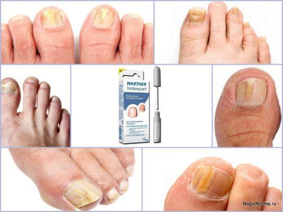 Средство от грибка ногтей на ногах вартнер