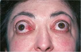 Причины экзофтальма одного глаза и лечение выпученного глазного яблока