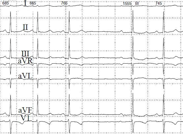 Основные причины атриовентрикулярной блокады сердца, диагностика и лечение
