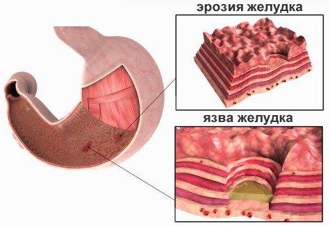 Диета при эрозии желудка и язве