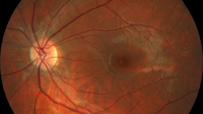 Отслоение (отслойка) сетчатки глазапричины, признаки, диагностика и лечение