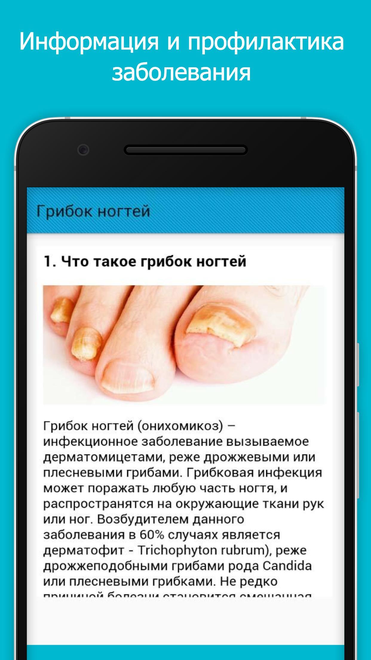 Негрибковые заболевания ногтей: что лечить, а что нет