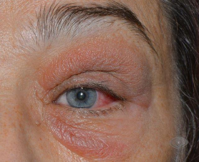 Что такое дакриоцистит (воспаление слезного канала): симптомы и эффективное лечение