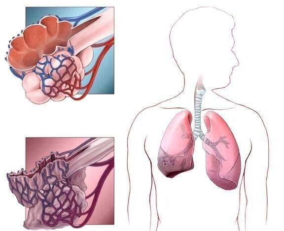Что остается после туберкулеза: последствия и осложнения недуга