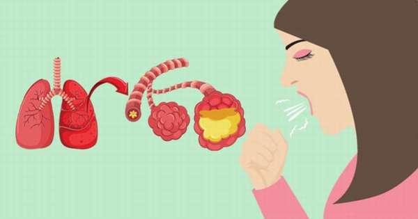 Укрепление иммунитета после пневмонии у детей и взрослых