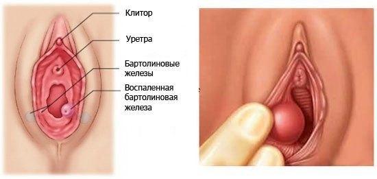 Абсцесс бартолиновой железы: лечение, операция, причины, фото