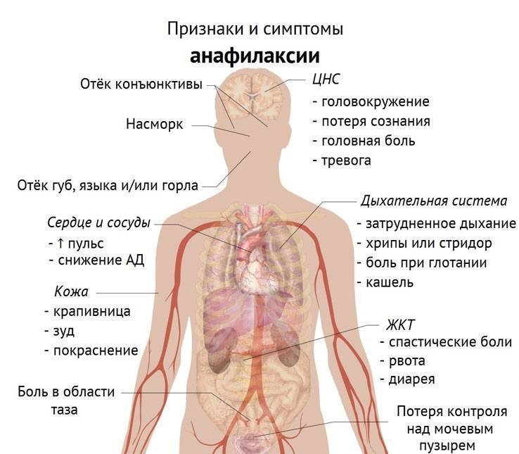 Уколы диклофенак при остеохондрозе поясничного отдела позвоночника