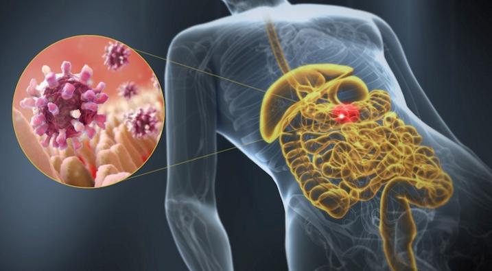 Острый гастроэнтерит – симптомы, лечение, острый гастроэнтерит у детей
